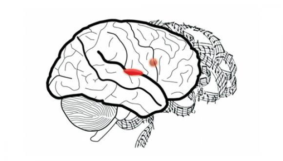 Between pleasure and desire in the human brain